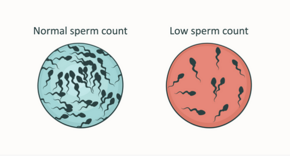 improving-sperm-quality-and-quantity